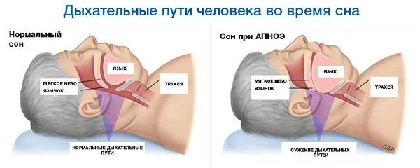 Фрагментация сна - апноэ