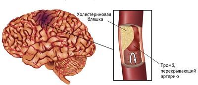 Тромб и холестериновая бляшка