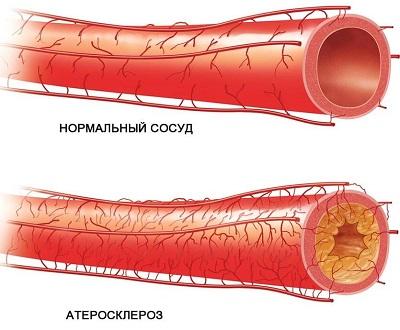 Заболевание атеросклероз