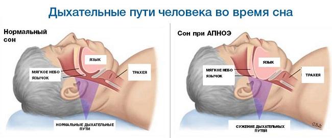 Нарушения дыхания после инсульта