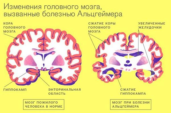 Изменения мозга - болезнь Альцгеймера
