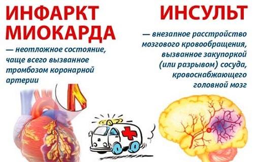 Инфаркт и инсульт - различия