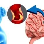 Первые признаки инсульта и помощь